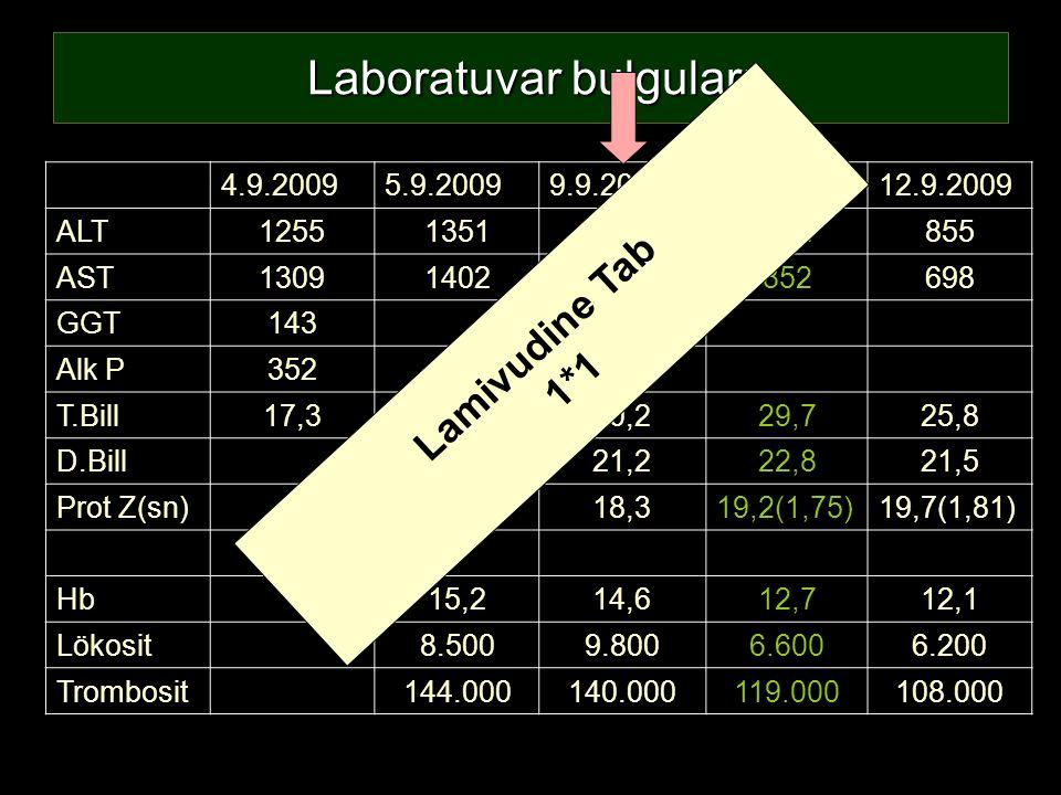 Laboratuvar bulguları 4.9.20095.9.20099.9.200910.9.200912.9.2009 ALT1255135112931027855 AST130914021103852698 GGT14367 Alk P352154 T.Bill17,319,430,22