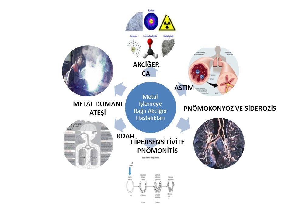 Metal İşlemeye Bağlı Akciğer Hastalıkları AKCİĞER CA ASTIM METAL DUMANI ATEŞİ KOAH HİPERSENSİTİVİTE PNÖMONİTİS PNÖMOKONYOZ VE SİDEROZİS