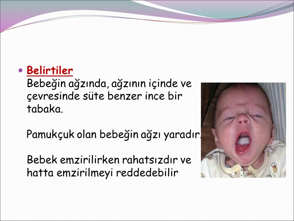 Belirtiler Bebeğin ağzında, ağzının içinde ve çevresinde süte benzer ince bir tabaka. Pamukçuk olan bebeğin ağzı yaradır. Bebek emzirilirken rahatsızd