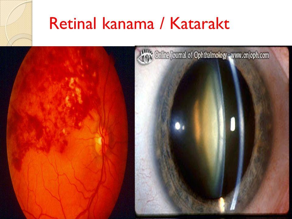 Retinal kanama / Katarakt