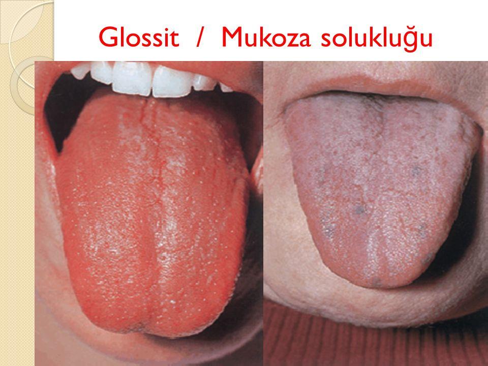 Glossit / Mukoza soluklu ğ u