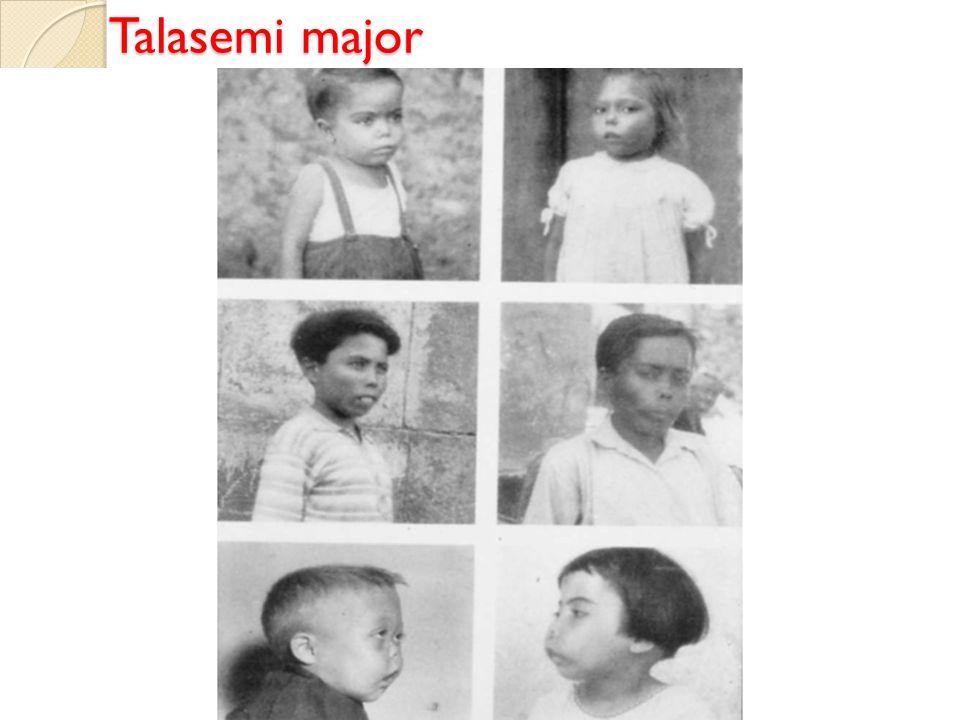 Talasemi major Talasemi major