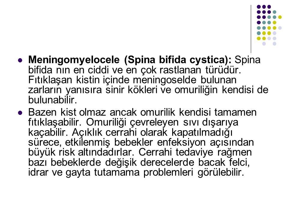Meningomyelocele (Spina bifida cystica): Spina bifida nın en ciddi ve en çok rastlanan türüdür. Fıtıklaşan kistin içinde meningoselde bulunan zarların