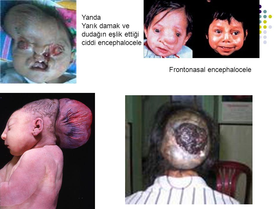 Yanda Yarık damak ve dudağın eşlik ettiği ciddi encephalocele Frontonasal encephalocele
