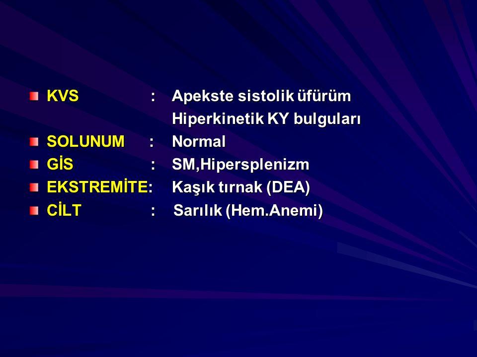 KVS :Apekste sistolik üfürüm Hiperkinetik KY bulguları Hiperkinetik KY bulguları SOLUNUM :Normal GİS :SM,Hipersplenizm EKSTREMİTE:Kaşık tırnak (DEA) C