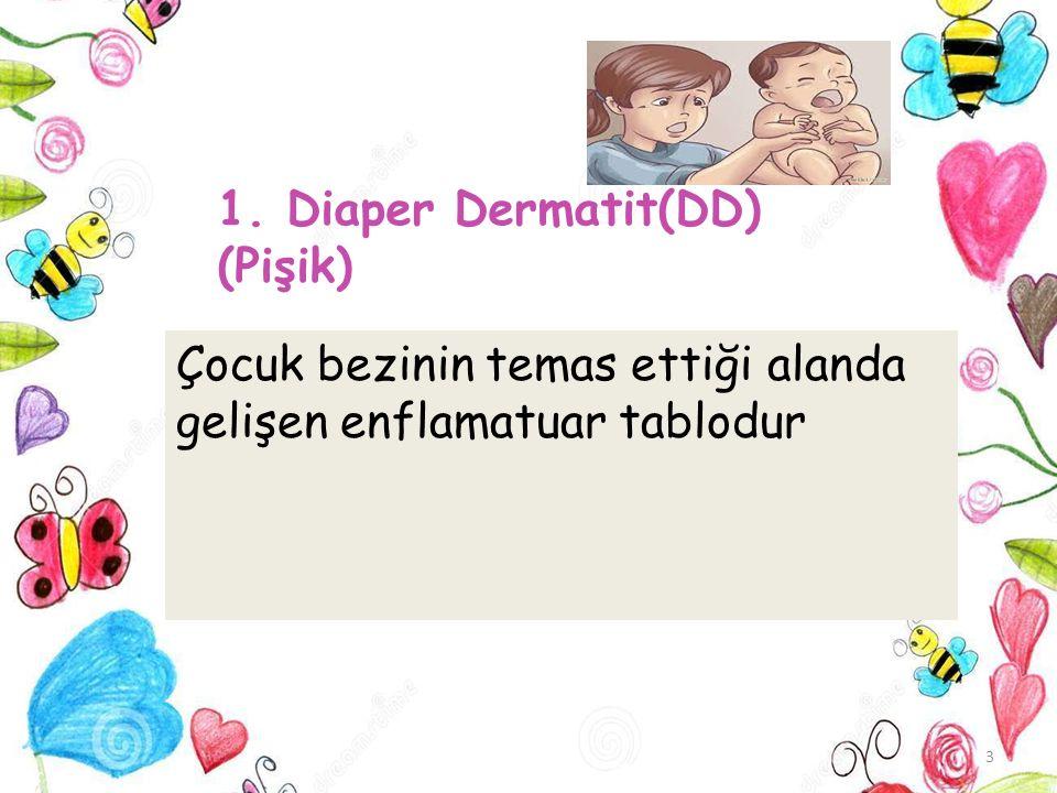 1. Diaper Dermatit(DD) (Pişik) 3 Çocuk bezinin temas ettiği alanda gelişen enflamatuar tablodur