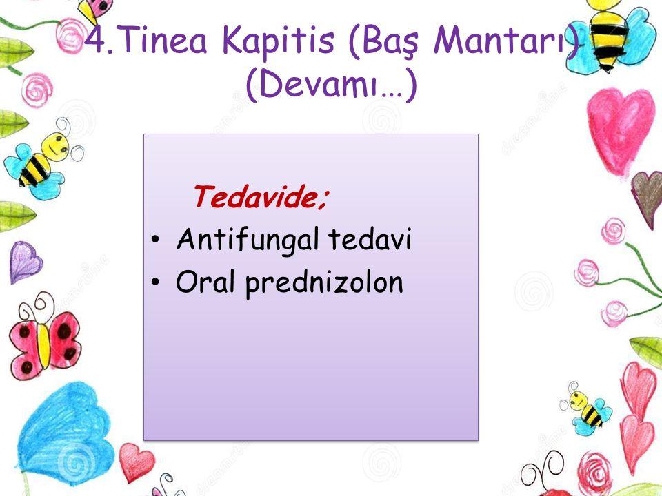 4.Tinea Kapitis (Baş Mantarı) (Devamı…) Tedavide; Antifungal tedavi Oral prednizolon Tedavide; Antifungal tedavi Oral prednizolon