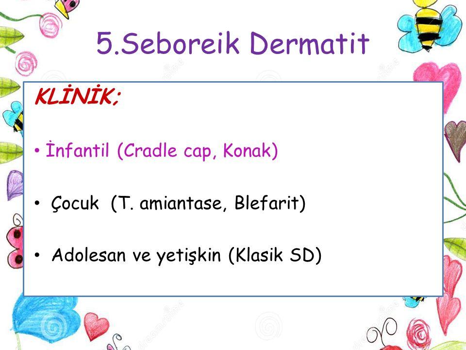 5.Seboreik Dermatit KLİNİK; İnfantil (Cradle cap, Konak) Çocuk (T. amiantase, Blefarit) Adolesan ve yetişkin (Klasik SD)