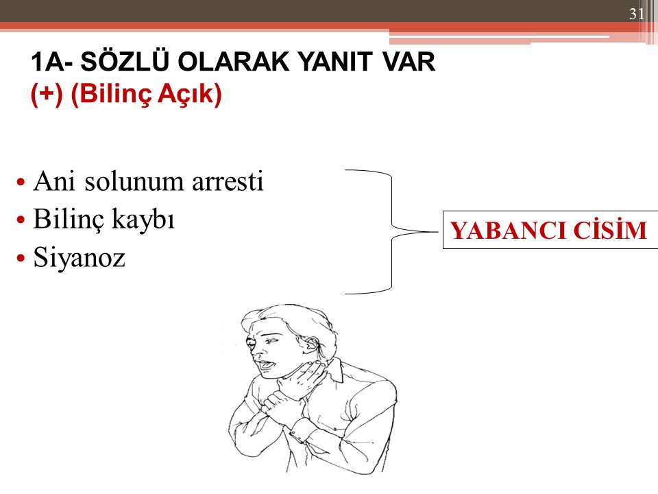 Ani solunum arresti Bilinç kaybı Siyanoz 1A- SÖZLÜ OLARAK YANIT VAR (+) (Bilinç Açık) YABANCI CİSİM 31