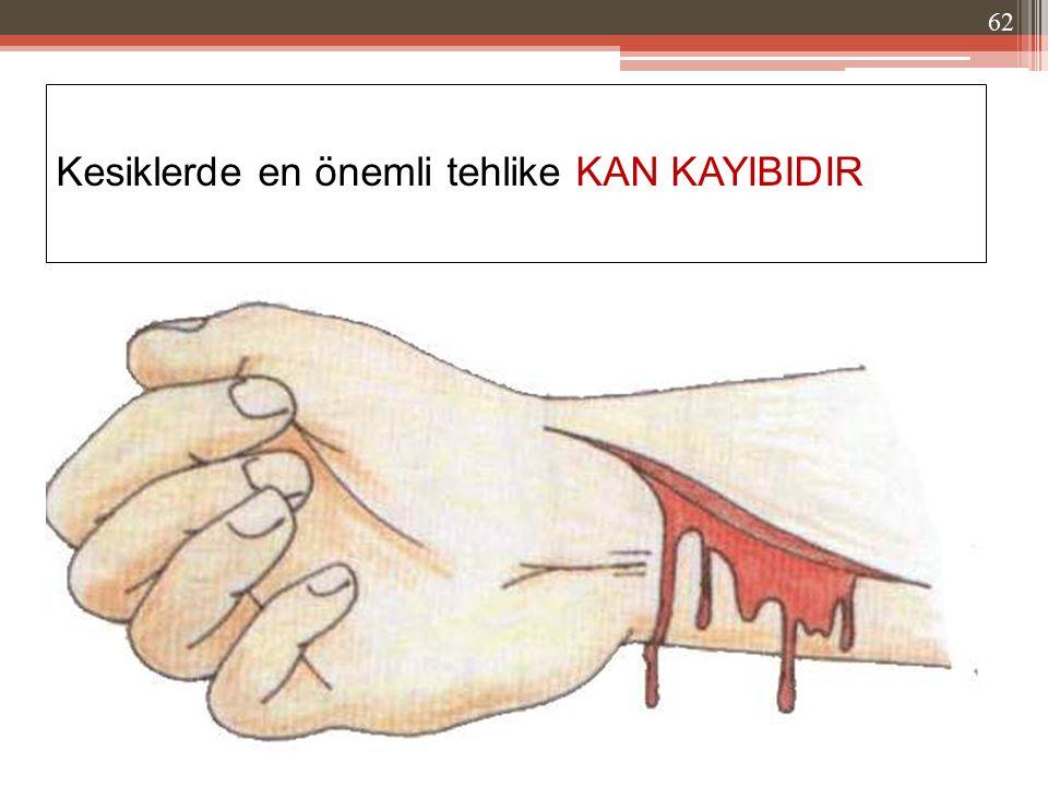 Kesiklerde en önemli tehlike KAN KAYIBIDIR 62