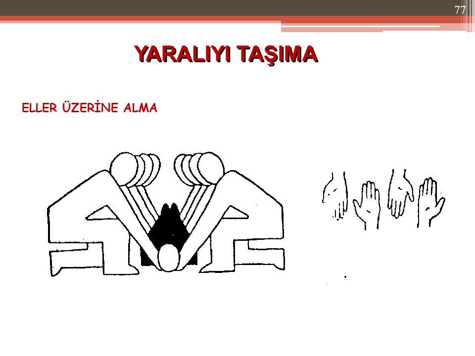 YARALIYI TAŞIMA ELLER ÜZERİNE ALMA 77