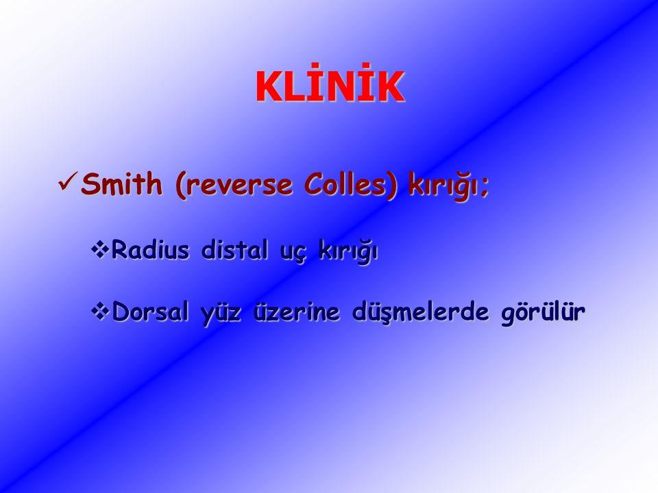 KLİNİK Smith (reverse Colles) kırığı; Smith (reverse Colles) kırığı;  Radius distal uç kırığı  Dorsal yüz üzerine düşmelerde görülür