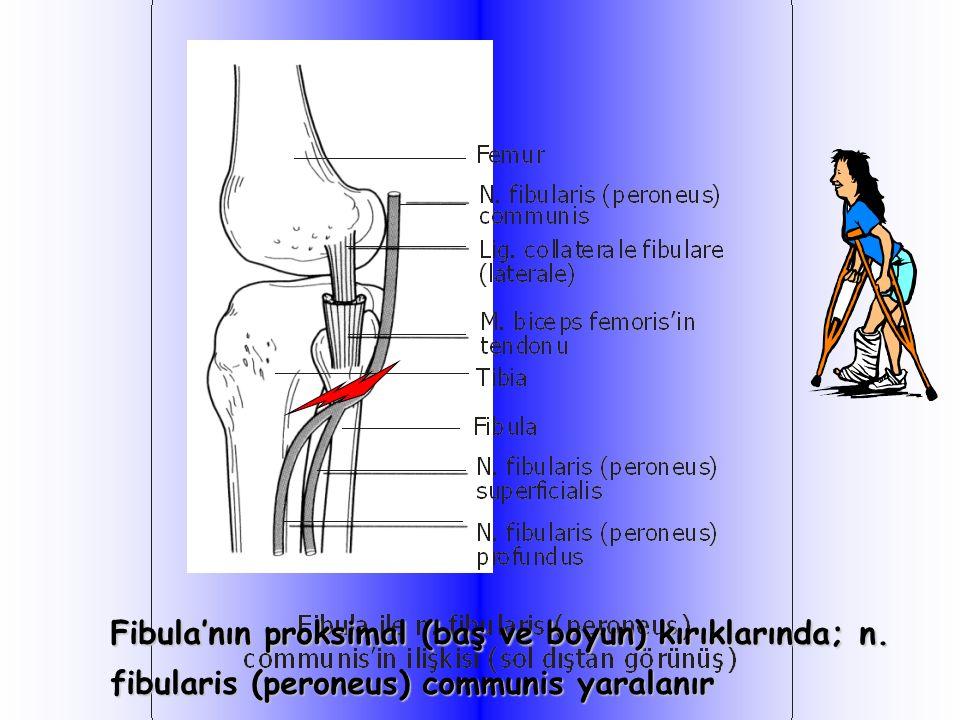 Fibula'nın proksimal (baş ve boyun) kırıklarında; n. fibularis (peroneus) communis yaralanır