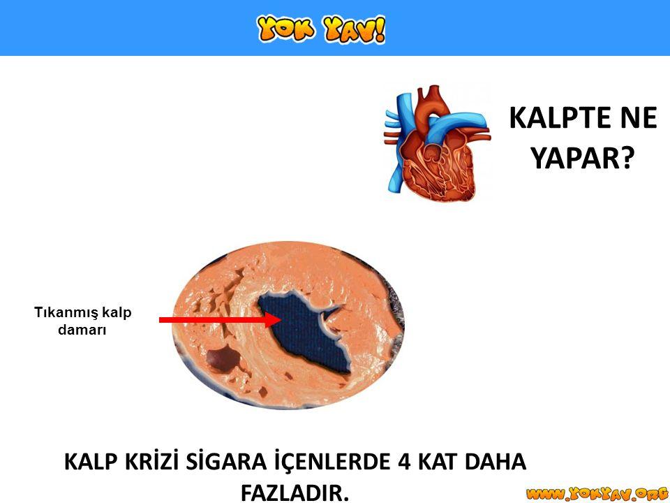 KALPTE NE YAPAR? KALP KRİZİ SİGARA İÇENLERDE 4 KAT DAHA FAZLADIR. Tıkanmış kalp damarı