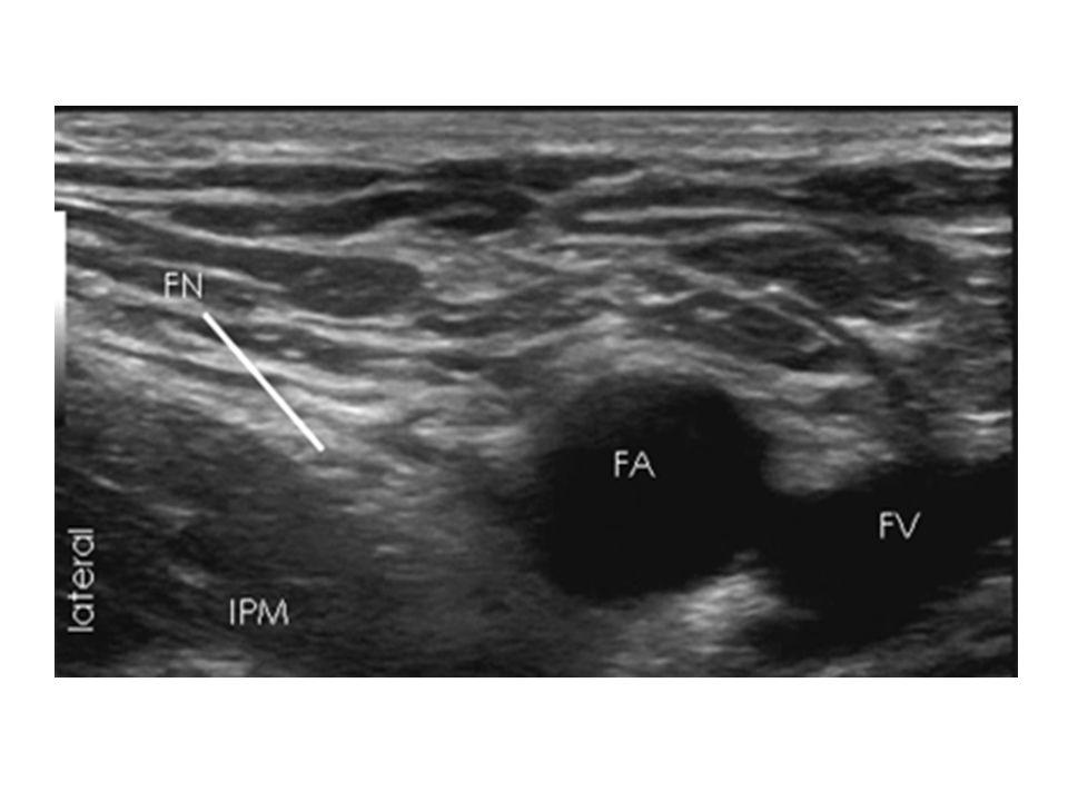 Gerekli malzeme Yüksek frekanslı lineer prob 22 G iğne 15-20 cc lokal anestezik – Kısa etkili (prilokain, lidokain vb): EVLA, anjioplasti – Uzun etkili (bupivakain): uzun süreli analjezi gerekiyorsa
