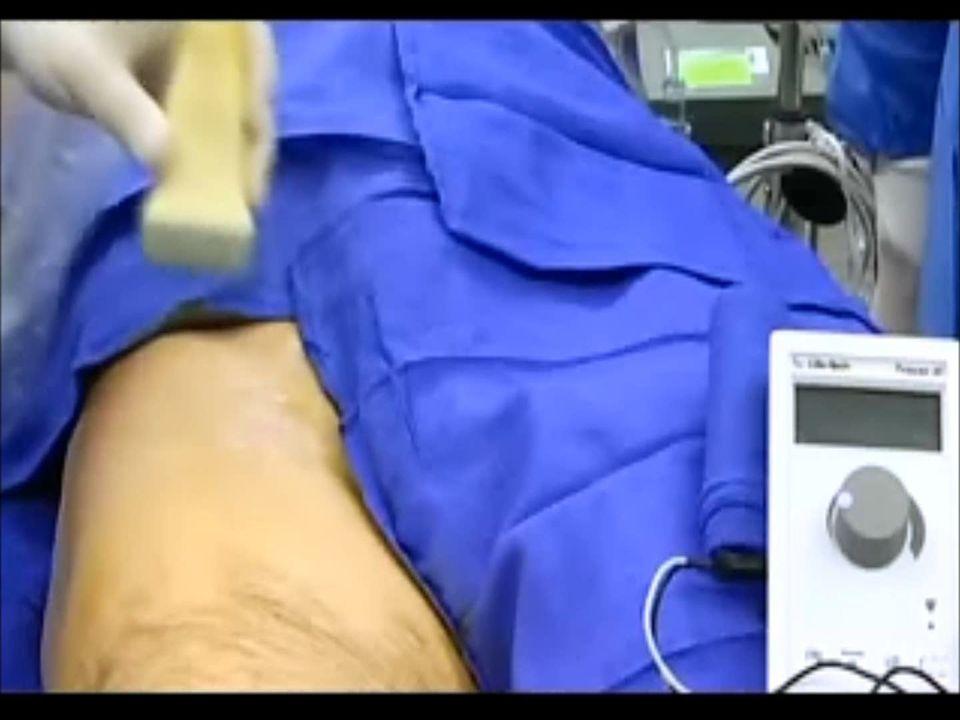 Komplikasyonlar Enfeksiyon Hematom Sinir hasarı – İntranöral ve yüksek basınçlı enjeksiyon – İlaca bağlı sinir hasarı: SF ile konsantrasyonu düşür İntravasküler enjeksiyon Motor kayıp nedeniyle hastayı düşmeye karşı mutlaka uyar !