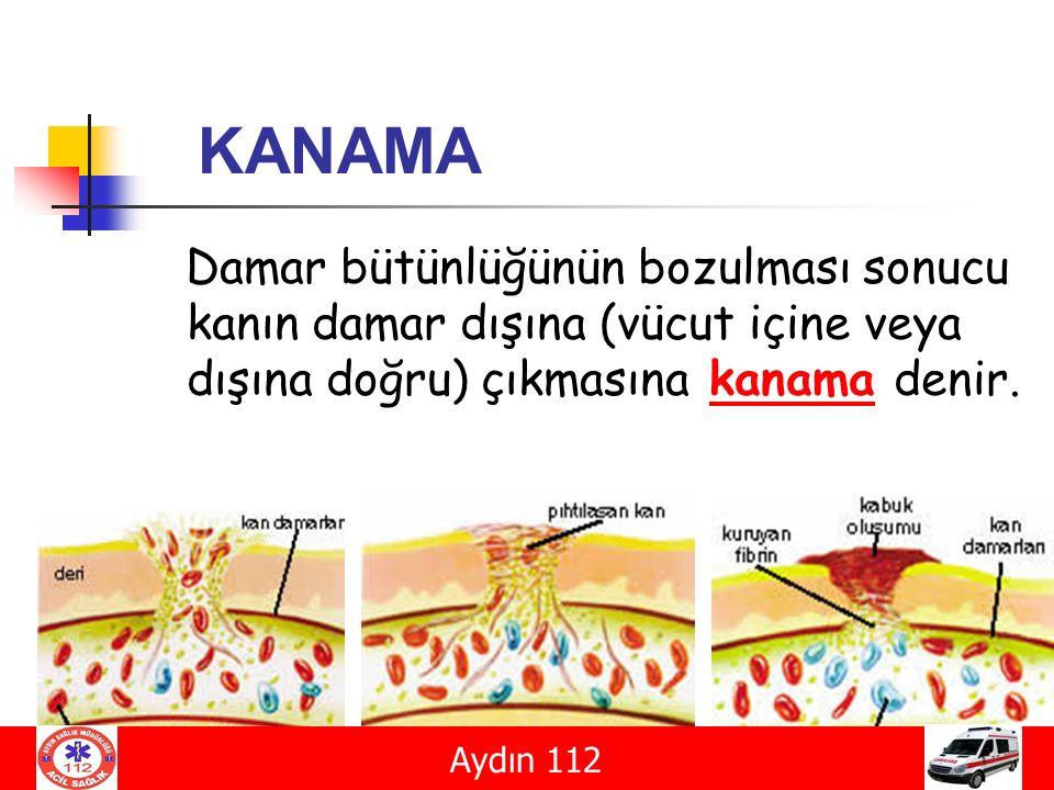 KANAMA Damar bütünlüğünün bozulması sonucu kanın damar dışına (vücut içine veya dışına doğru) çıkmasına kanama denir. Aydın 112