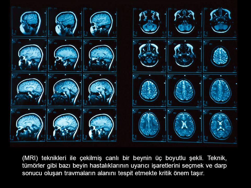 (MRI) teknikleri ile çekilmiş canlı bir beynin üç boyutlu şekli.