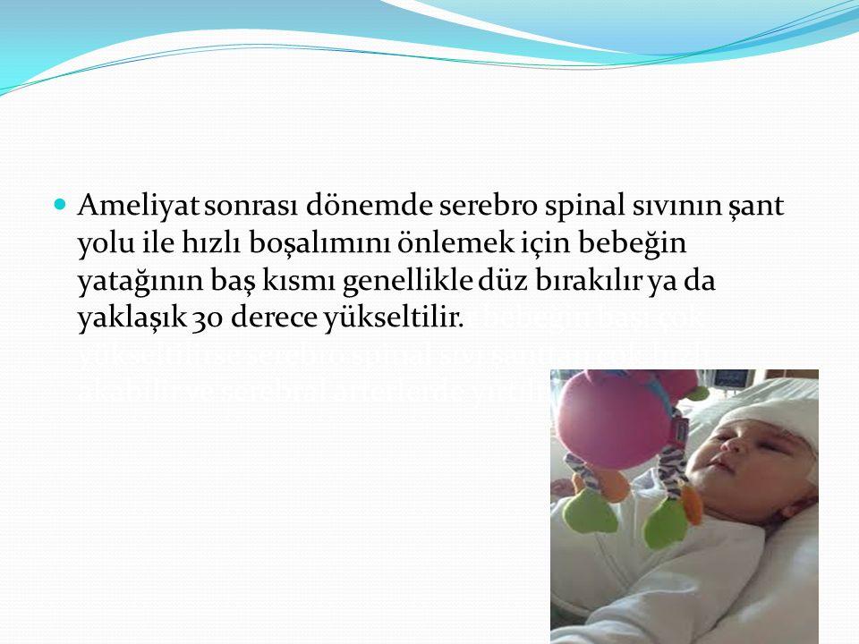 Ameliyat sonrası dönemde serebro spinal sıvının şant yolu ile hızlı boşalımını önlemek için bebeğin yatağının baş kısmı genellikle düz bırakılır ya da