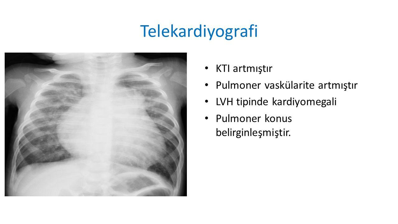 KTI artmıştır Pulmoner vaskülarite artmıştır LVH tipinde kardiyomegali Pulmoner konus belirginleşmiştir.