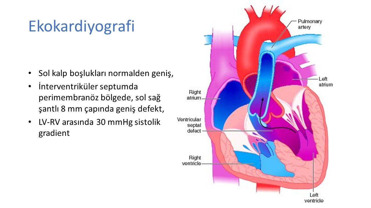Ekokardiyografi Sol kalp boşlukları normalden geniş, İnterventriküler septumda perimembranöz bölgede, sol sağ şantlı 8 mm çapında geniş defekt, LV-RV arasında 30 mmHg sistolik gradient