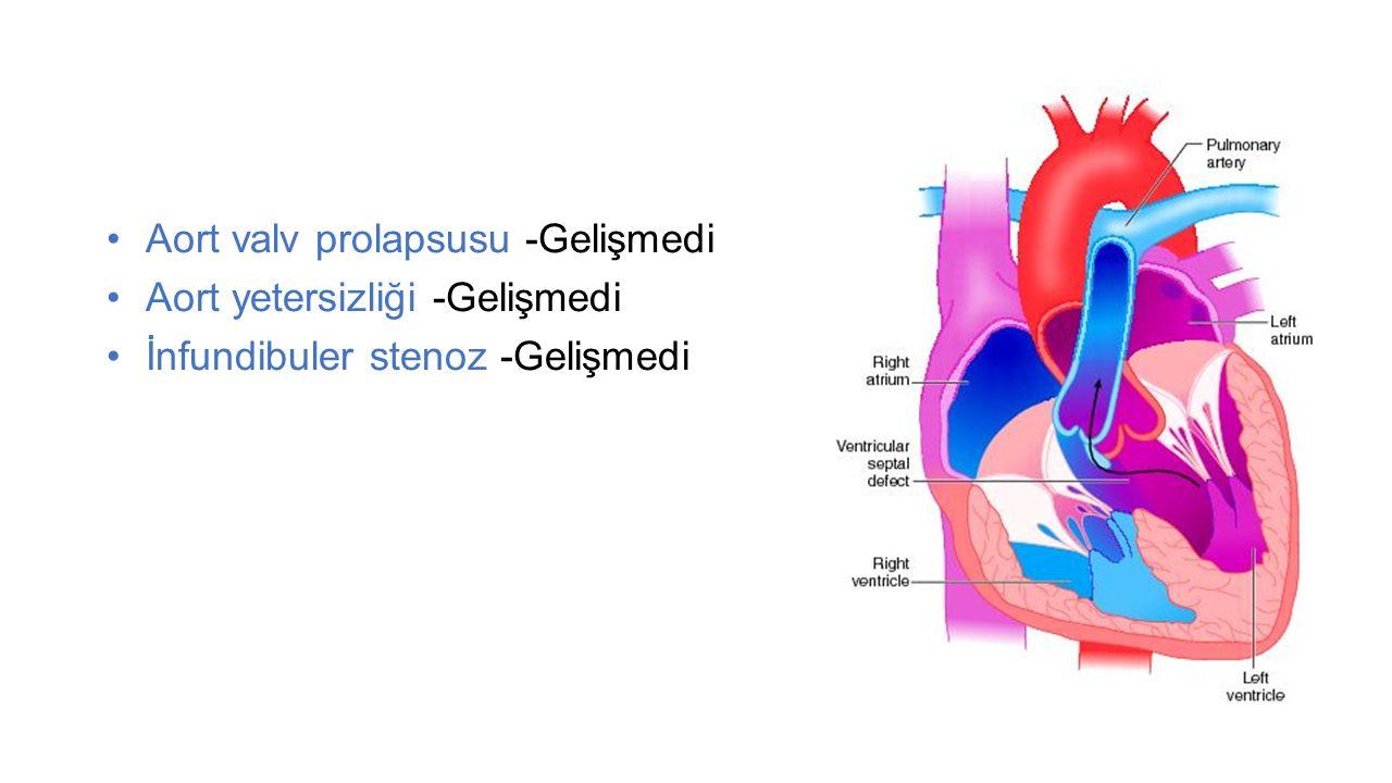 Aort valv prolapsusu -Gelişmedi Aort yetersizliği -Gelişmedi İnfundibuler stenoz -Gelişmedi