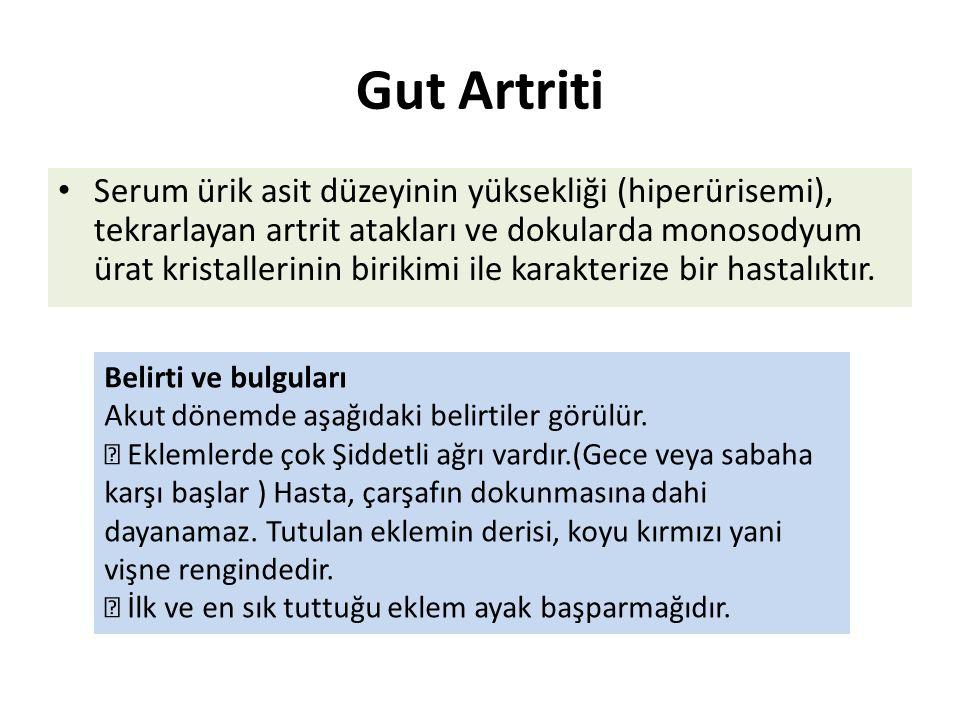Gut Artriti Serum ürik asit düzeyinin yüksekliği (hiperürisemi), tekrarlayan artrit atakları ve dokularda monosodyum ürat kristallerinin birikimi ile karakterize bir hastalıktır.