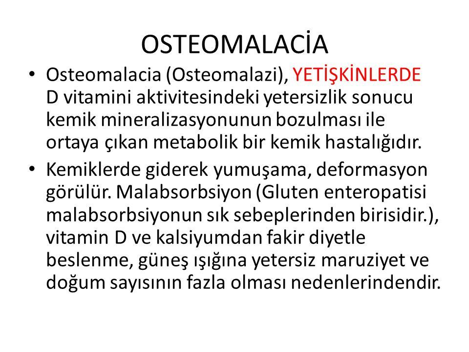 OSTEOMALACİA Osteomalacia (Osteomalazi), YETİŞKİNLERDE D vitamini aktivitesindeki yetersizlik sonucu kemik mineralizasyonunun bozulması ile ortaya çıkan metabolik bir kemik hastalığıdır.