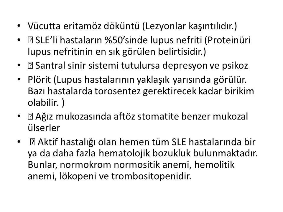 Vücutta eritamöz döküntü (Lezyonlar kaşıntılıdır.)  SLE'li hastaların %50'sinde lupus nefriti (Proteinüri lupus nefritinin en sık görülen belirtisidi