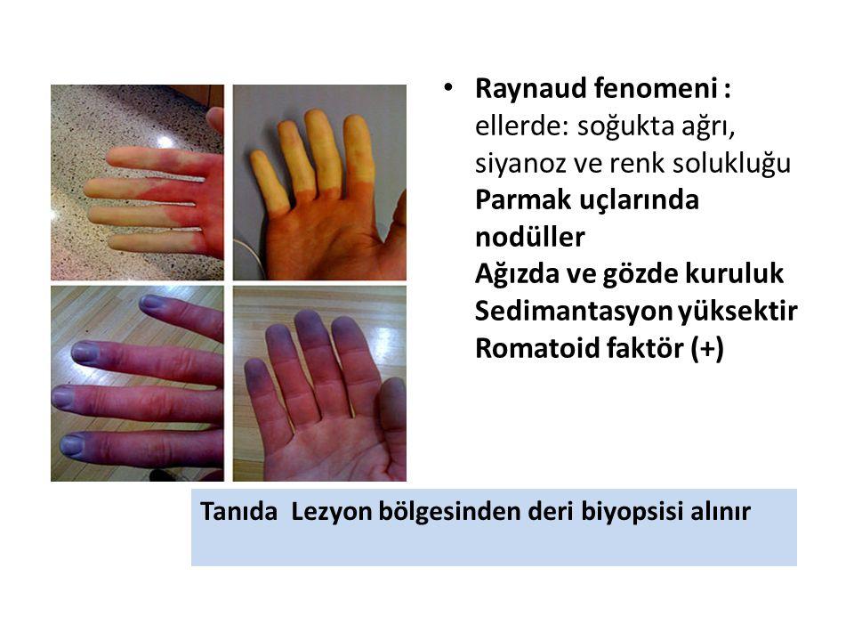 Raynaud fenomeni : ellerde: soğukta ağrı, siyanoz ve renk solukluğu Parmak uçlarında nodüller Ağızda ve gözde kuruluk Sedimantasyon yüksektir Romatoid faktör (+) Tanıda Lezyon bölgesinden deri biyopsisi alınır