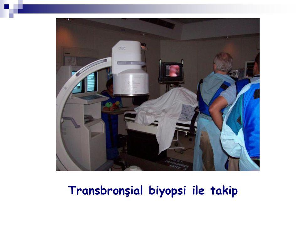 Transbronşial biyopsi ile takip