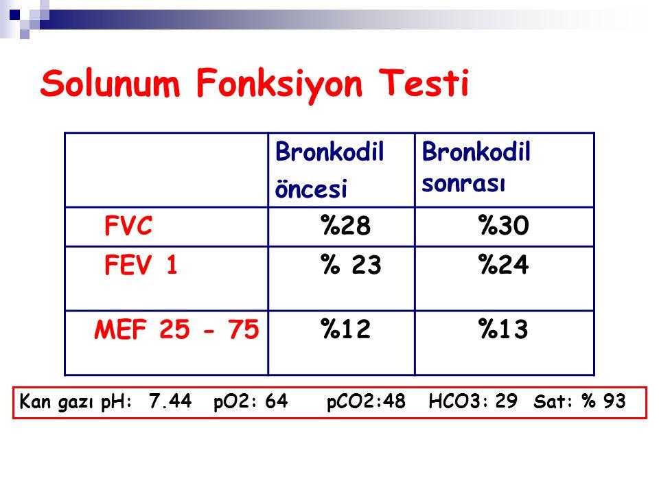 Solunum Fonksiyon Testi Bronkodil öncesi Bronkodil sonrası FVC %28 %30 FEV 1 % 23 %24 MEF 25 - 75 %12 %13 Kan gazı pH: 7.44 pO2: 64 pCO2:48 HCO3: 29 Sat: % 93