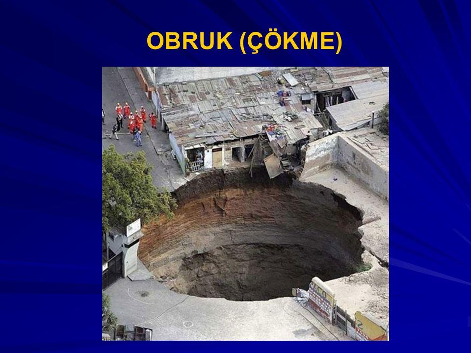 OBRUK (ÇÖKME)
