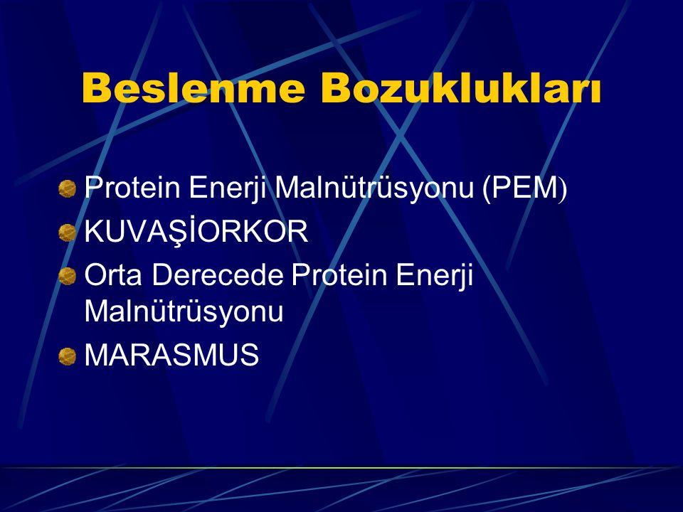 Beslenme Bozuklukları Protein Enerji Malnütrüsyonu (PEM ) KUVAŞİORKOR Orta Derecede Protein Enerji Malnütrüsyonu MARASMUS