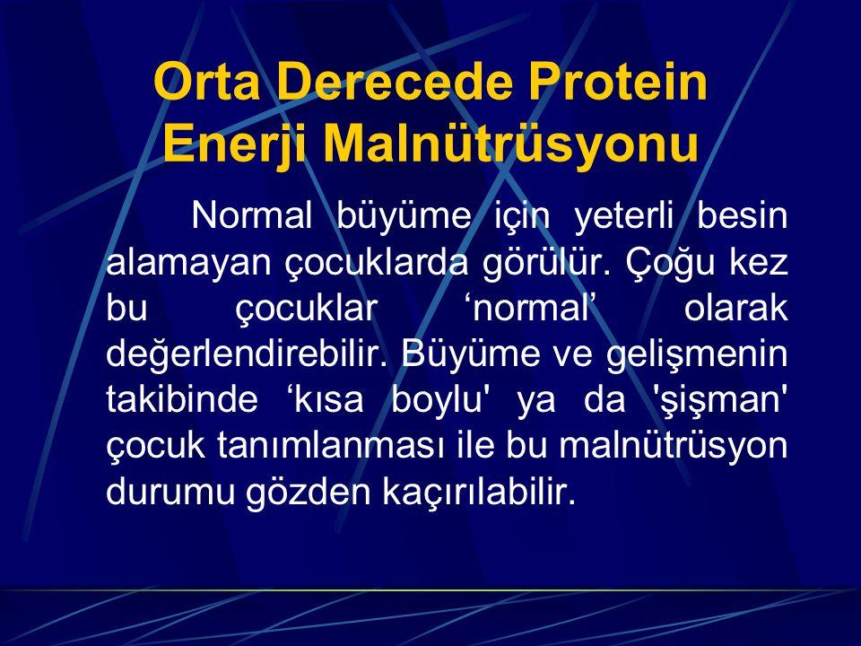Orta Derecede Protein Enerji Malnütrüsyonu Normal büyüme için yeterli besin alamayan çocuklarda görülür. Çoğu kez bu çocuklar 'normal' olarak değerlen
