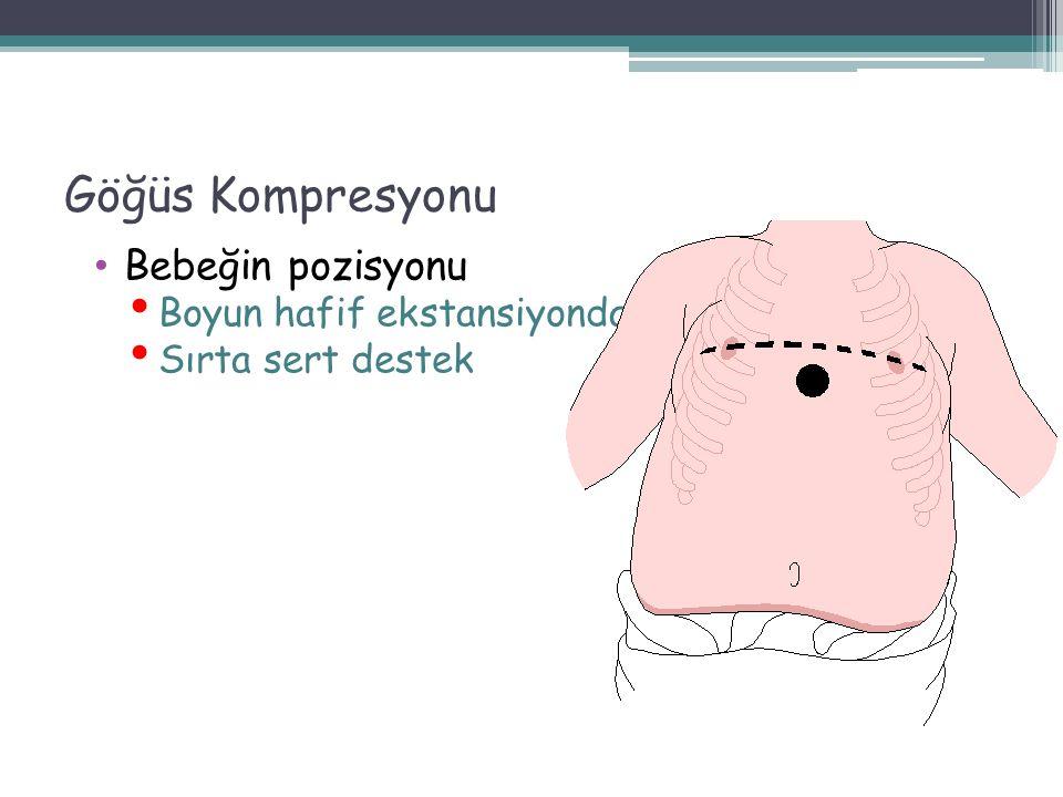 Göğüs Kompresyonu Bebeğin pozisyonu Boyun hafif ekstansiyonda Sırta sert destek 59