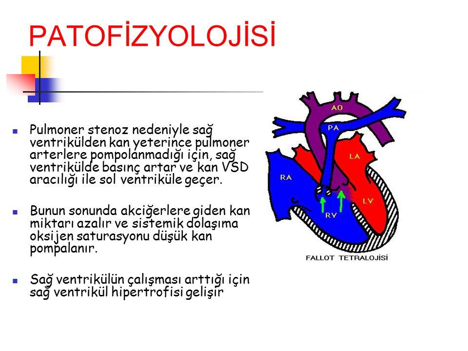 PATOFİZYOLOJİSİ Pulmoner stenoz nedeniyle sağ ventrikülden kan yeterince pulmoner arterlere pompolanmadığı için, sağ ventrikülde basınç artar ve kan V