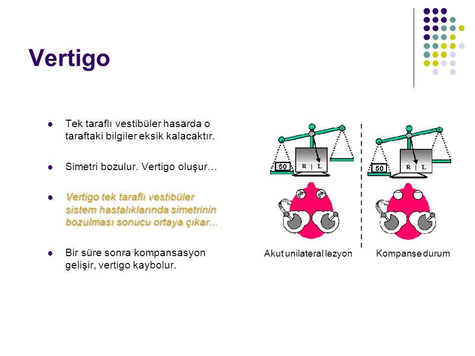 Vertigo Vertigo vestibüler sistem hastalıklarının belirtisidir. Vestibüler end organ ve vestibüler sinir lezyonlarında hasta dönme hissinden yakınır;