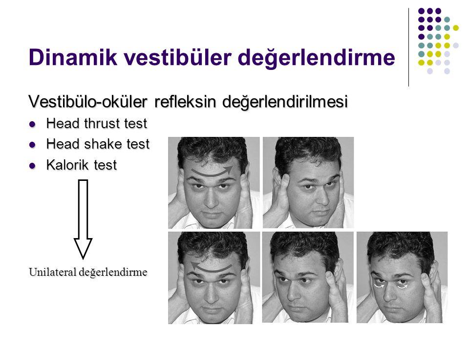 Statik vestibüler değerlendirme Spontan nistagmus Spontan nistagmus Fiksasyon ile kaybolurFiksasyon ile kaybolur Hızlı faz yönü sabittir veHızlı faz y