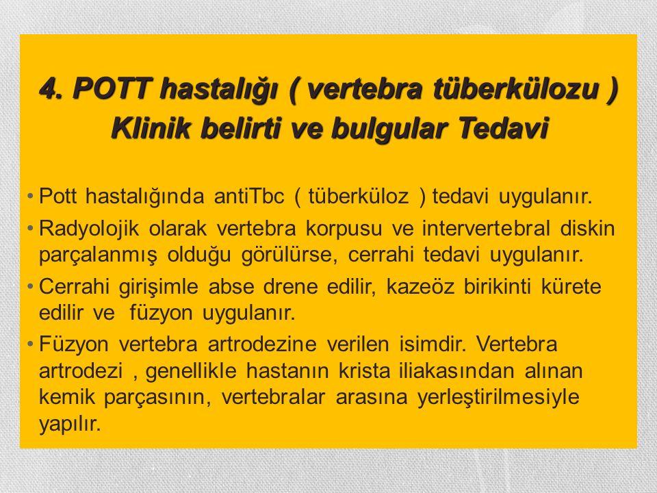 4. POTT hastalığı ( vertebra tüberkülozu ) Klinik belirti ve bulgular Tedavi Pott hastalığında antiTbc ( tüberküloz ) tedavi uygulanır. Radyolojik ola
