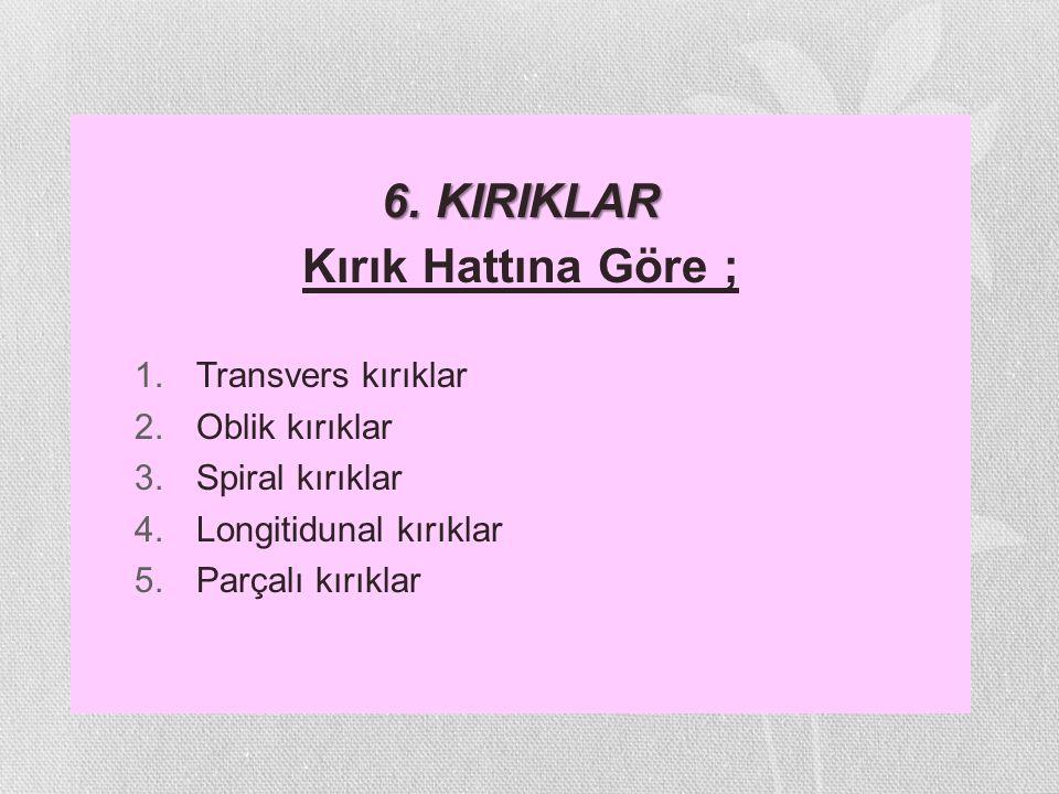 6. KIRIKLAR Kırık Hattına Göre ; 1.Transvers kırıklar 2.Oblik kırıklar 3.Spiral kırıklar 4.Longitidunal kırıklar 5.Parçalı kırıklar