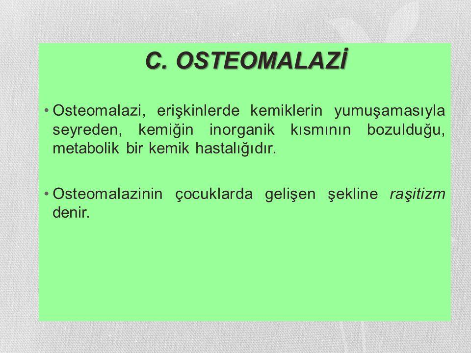 C. OSTEOMALAZİ Osteomalazi, erişkinlerde kemiklerin yumuşamasıyla seyreden, kemiğin inorganik kısmının bozulduğu, metabolik bir kemik hastalığıdır. Os