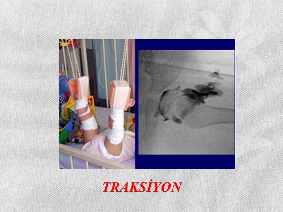 TRAKSİYON