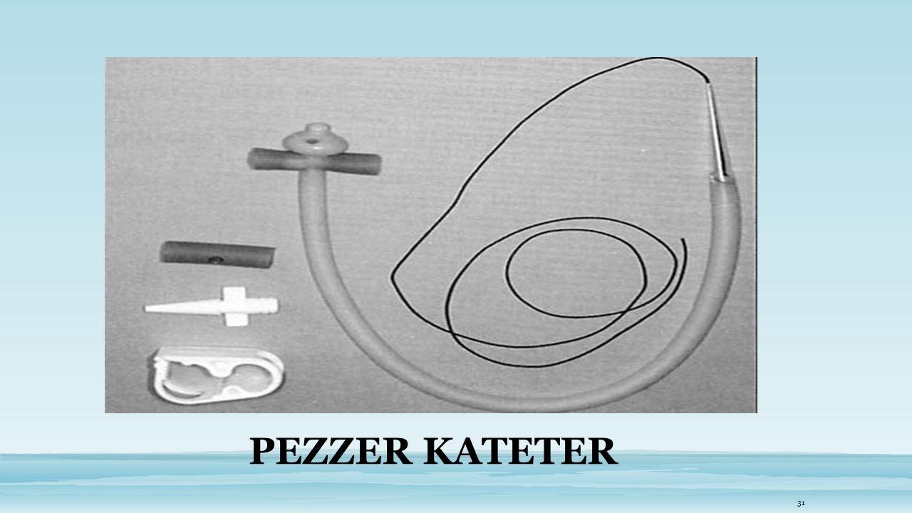 PEZZER KATETER 31