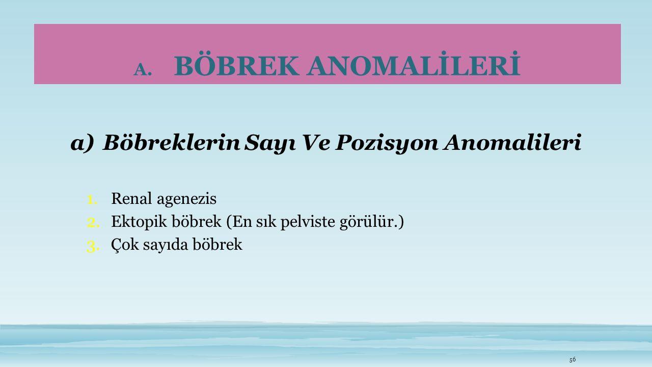 A. BÖBREK ANOMALİLERİ a)Böbreklerin Sayı Ve Pozisyon Anomalileri 1. Renal agenezis 2. Ektopik böbrek (En sık pelviste görülür.) 3. Çok sayıda böbrek 5