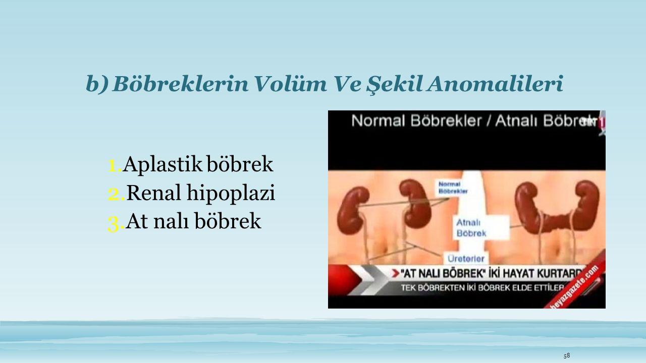 b)Böbreklerin Volüm Ve Şekil Anomalileri 1. Aplastik böbrek 2. Renal hipoplazi 3. At nalı böbrek 58