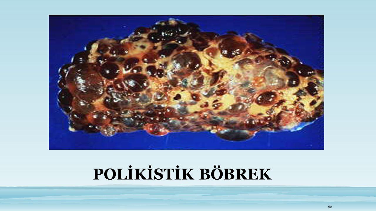 POLİKİSTİK BÖBREK 60