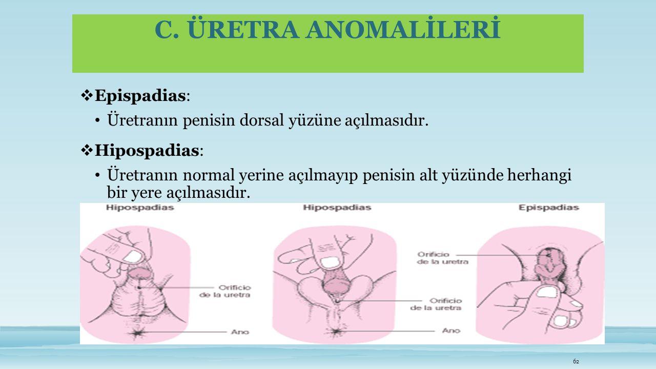 C. ÜRETRA ANOMALİLERİ  Epispadias: Üretranın penisin dorsal yüzüne açılmasıdır.  Hipospadias: Üretranın normal yerine açılmayıp penisin alt yüzünde