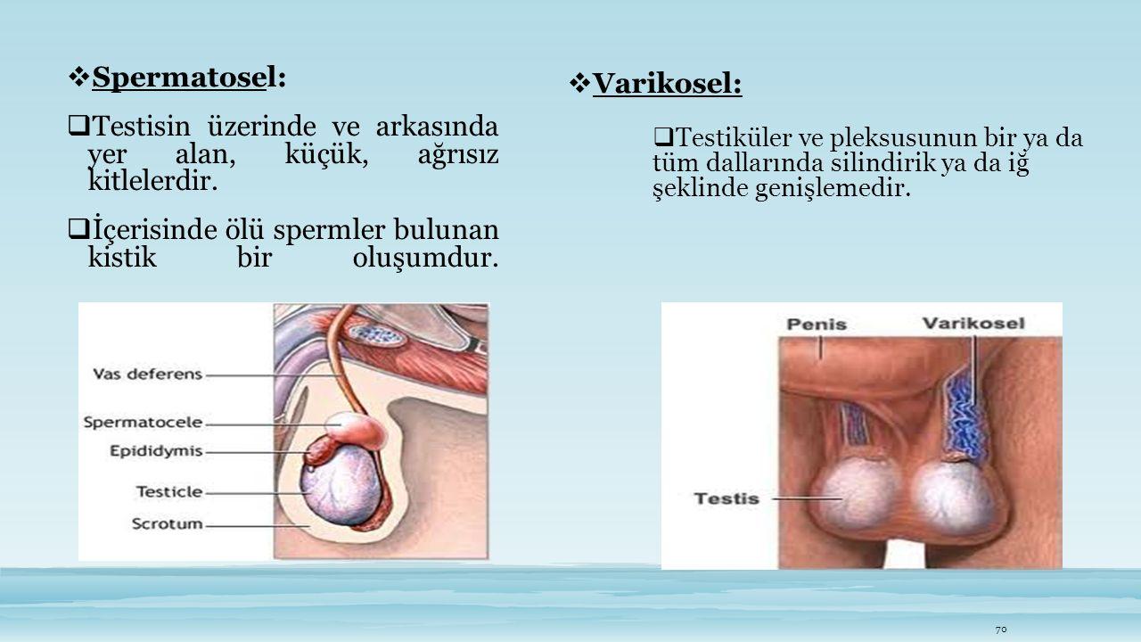  Spermatosel:  Testisin üzerinde ve arkasında yer alan, küçük, ağrısız kitlelerdir.  İçerisinde ölü spermler bulunan kistik bir oluşumdur. 70  Var