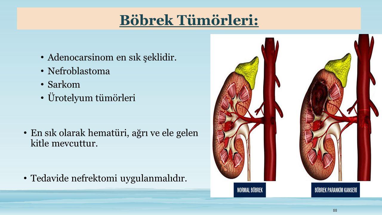 Böbrek Tümörleri: Adenocarsinom en sık şeklidir. Nefroblastoma Sarkom Ürotelyum tümörleri En sık olarak hematüri, ağrı ve ele gelen kitle mevcuttur. T